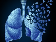 Study: Targeted Therapies Have Boosted Stage 4 Lung Cancer Survival Rates