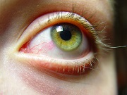 Survey: Individuals Report Worsened Dry Eye Symptoms with Prolonged Screen Usage
